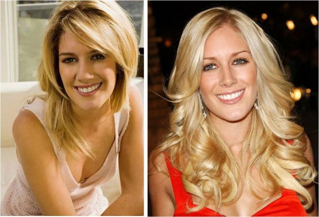 heidi montag before plastic surgery. heidi montag after surgery.