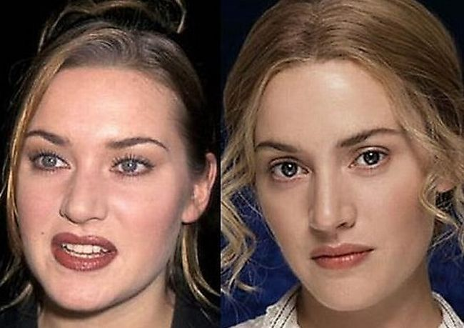 index of gallery before after celebrity plastic surgery pictures